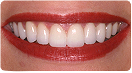 Costa Rica Porcelain Veneers After