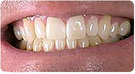 Costa Rica Dental Bonding, After