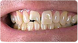 Costa Rica Dental Bonding, Before