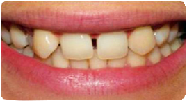 Costa Rica Dental Crown, Before