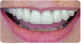 Costa Rica Dentures, After