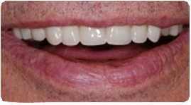 Costa Rica Partial Dentures, After