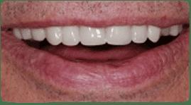 Dentadura parcial de Costa Rica, después