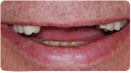 Costa Rica Partial Dentures, Before