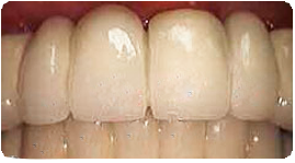 Costa Rica Dental Surgery, After