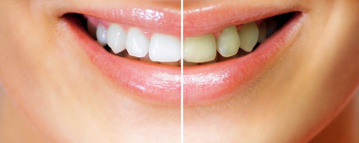Costa Rica Teeth Whitening