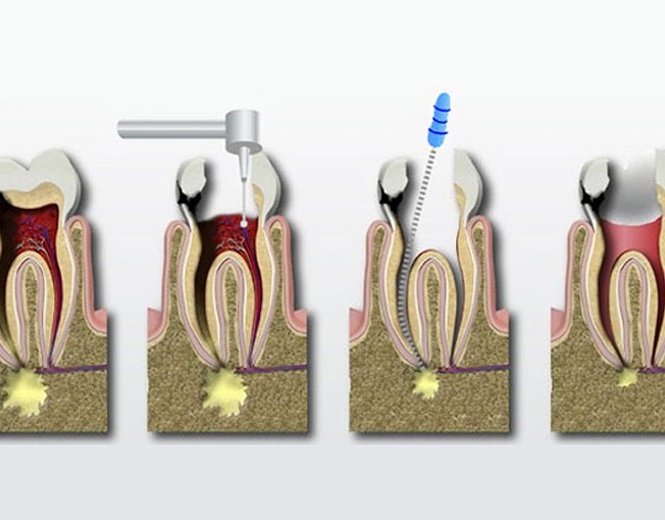 Root Canal Process Costa Rica