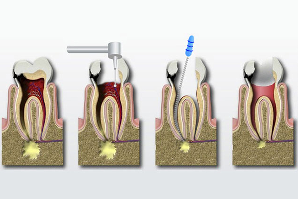 Costa Rica Root Canals, illustration