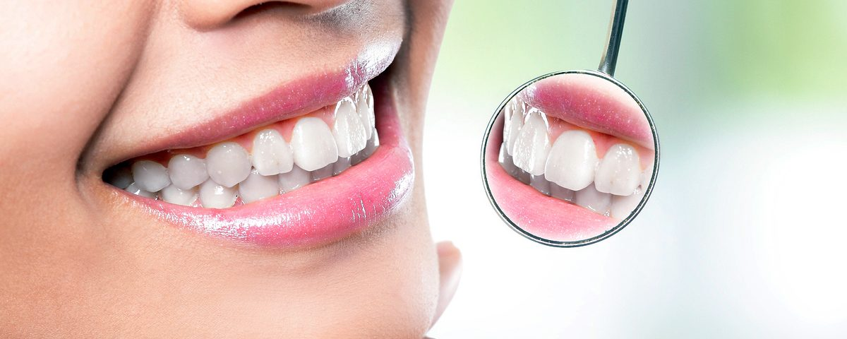 Female Smile, Costa Rica Dental Veneers