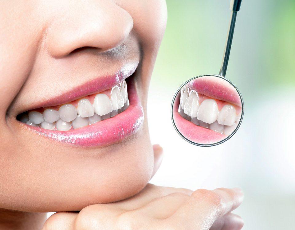 Female Smile, Costa Rica Dental Veneers