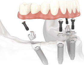 Implantes dentales All-on-4  en Costa Rica