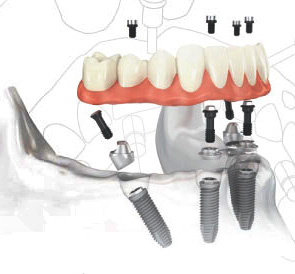 All-on-Four Dental Dental Implants Costa Rica