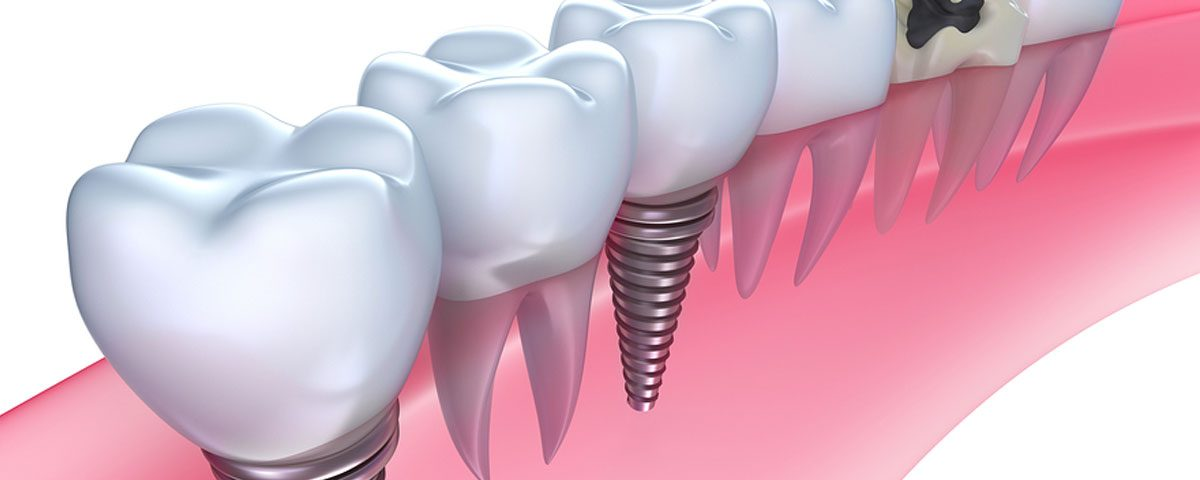 Type of Dental Implants, Costa Rica Implants