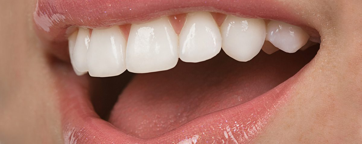 Costa Rica Porcelain Veneers, Dental Veneers, Dentists