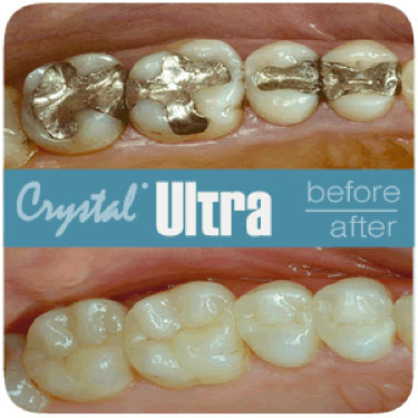 Crystal Ultra, Restoration Replacements in Costa Rica