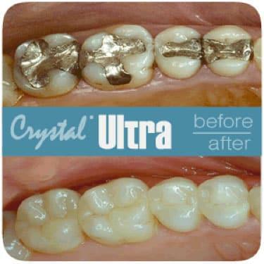 Crystal Ultra, Reemplazos de Restauración en Costa Rica