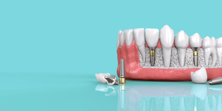 5 Steps toward your Dental Implant