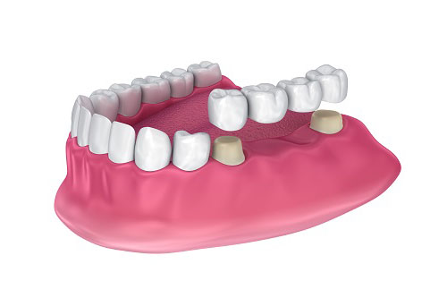 Costa Rica Dental Bridges