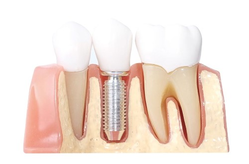 Implantes dentales en Costa Rica