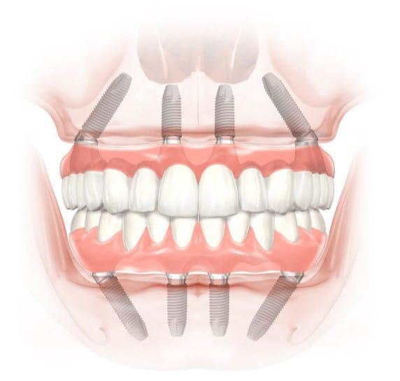 Restauración de arcada completa con implantes
