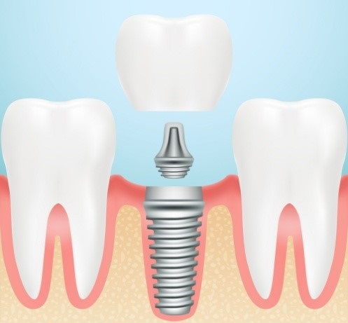 Single-tooth implant restoration