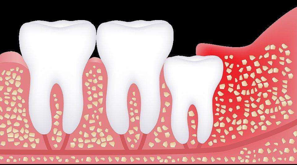 wisdom teeth costa rica dental team