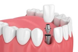 Single dental implant in Costa Rica